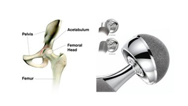 DePuy Hip Metal Construction Poses Cancer Risk