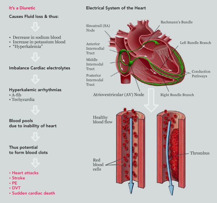 How Does Yaz Cause Heart Attack, Stroke, Pulmonary<br /> Embolism<br /> (PE) and Deep Vein Thrombosis (DVT)?